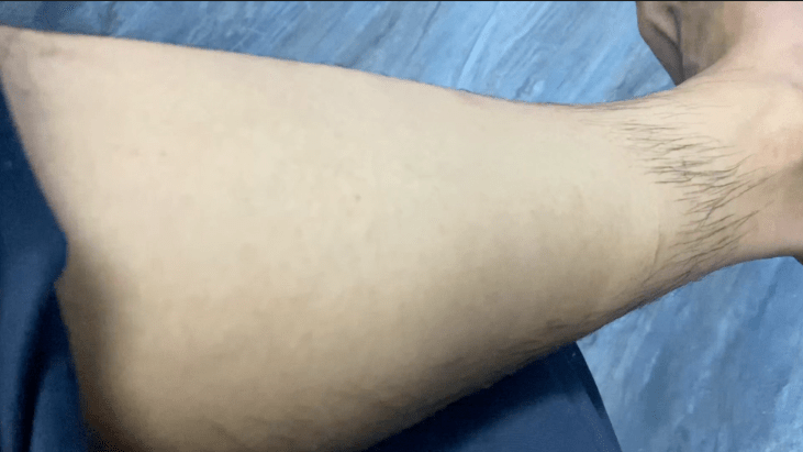 Hair Removal Powder Short Course In Eng Hindi Jyovis